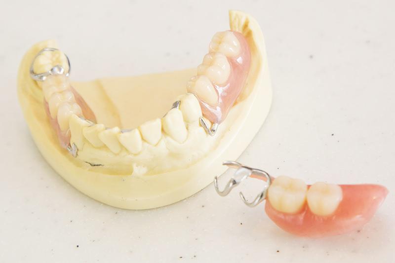 良く噛めて、自然に笑える快適な入れ歯を