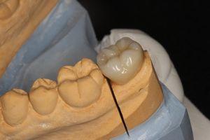 オールセラミック奥歯