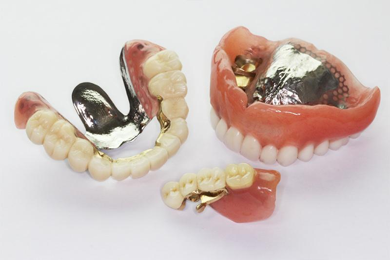 ドイツ式部分入れ歯(テレスコープシステム)