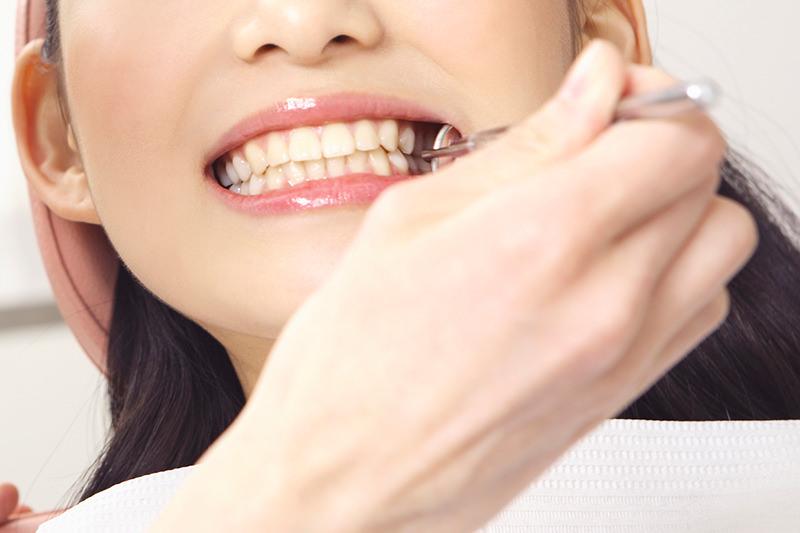 虫歯予防には定期メンテナンスが欠かせません