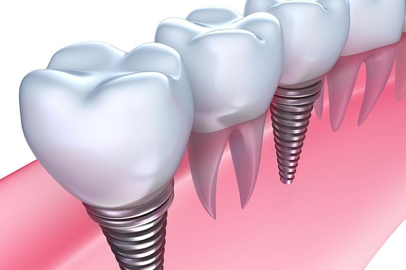 天然歯同様の機能性・審美性が実現するインプラント