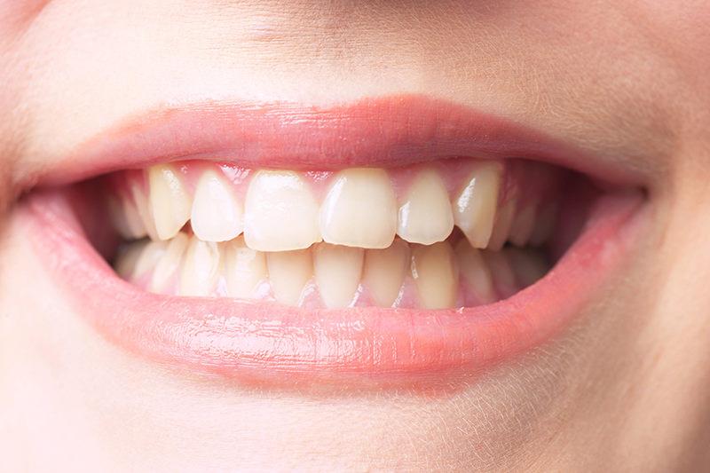 歯の黄ばみ・変色が気になる方へ